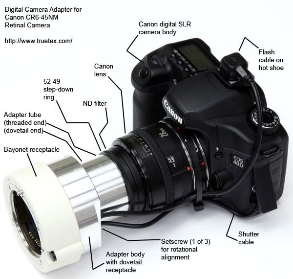 Digital camera adapter for Canon CR6-45NM retinal camera, shown with Canon lens and digital camera body