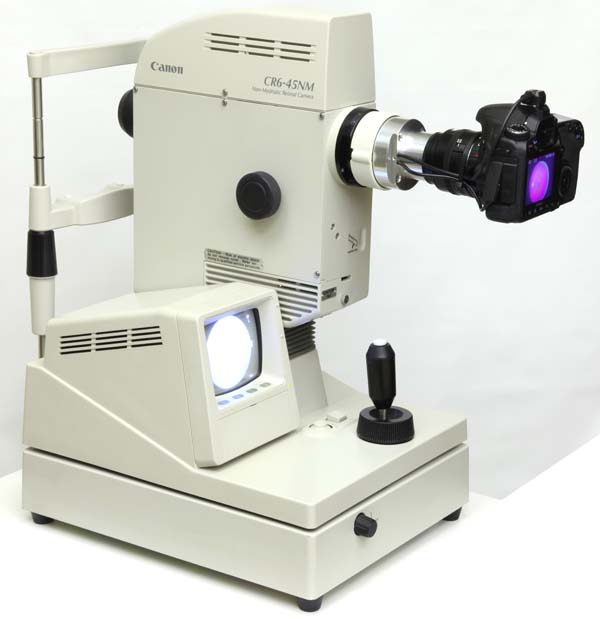 Canon CR6-45NM retinal camera with digital upgrade installed